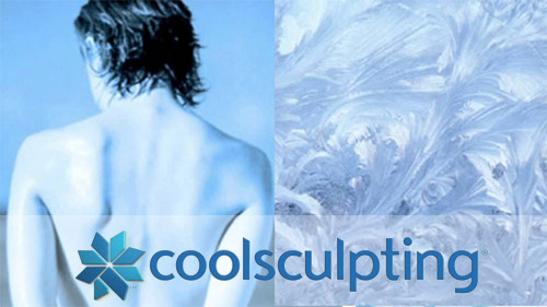 puff-coolsculpting