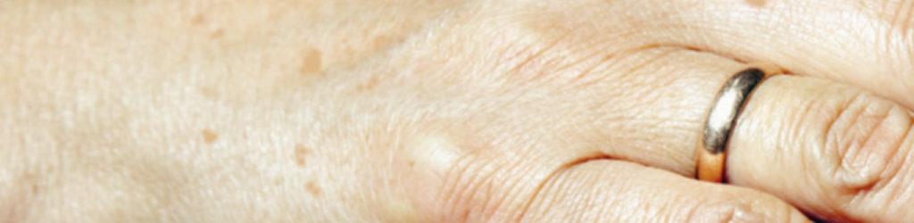 pigmentfläckar och åldersfläckar