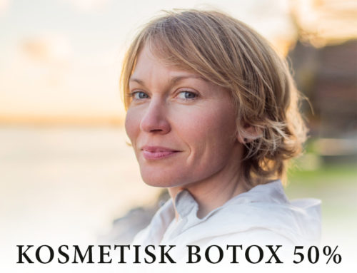 50% på kosmetisk Botox